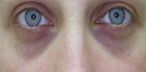 Dark circles around eyes liver