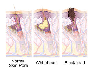 How to Choose & Use a Comedone/Blackhead Extractor